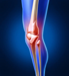 glucosamine joint pain relief